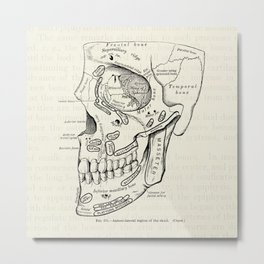 Vintage Medical Illustration of the Antero-Lateral Region of the Skull Metal Print