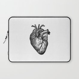 Vintage Heart Anatomy Laptop Sleeve