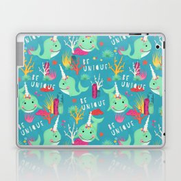 Narwhal Be Unique Pattern Laptop & iPad Skin
