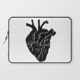 Black Heart II Laptop Sleeve