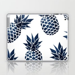 Pineapple Blue Denim Laptop & iPad Skin
