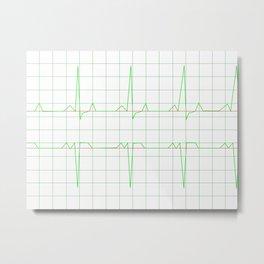 Normal Heart Rhythm Metal Print