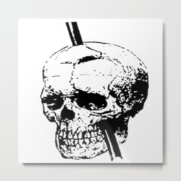 Skull of Phineas Gage With Tamping Iron Metal Print